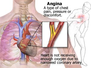 angina pectorisinteractive health, Skeleton