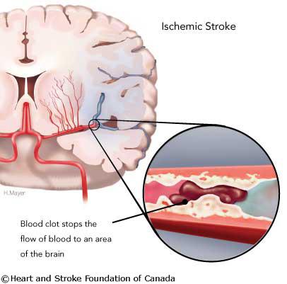 stroke damage diagram ischemic stokeinteractive health van damage diagram template