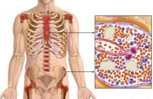 Leukemia – Acute Myeloid (AML)