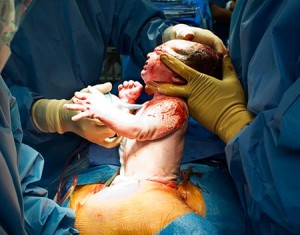 Birth C-section