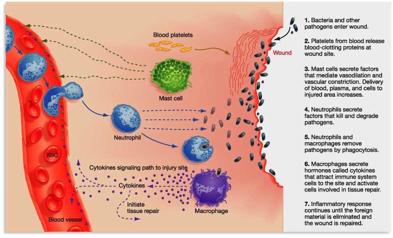 DermaMedics :: Understanding Skin Inflammation