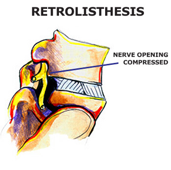pregnant with retrolisthesis