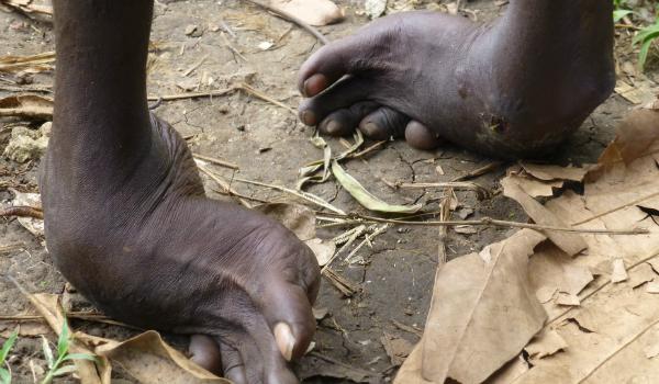 club feet