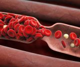 What is the Real Risk for Blood Clots in Your Legs?