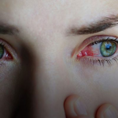 11 Prevention Tips to Avoid Conjunctivitis